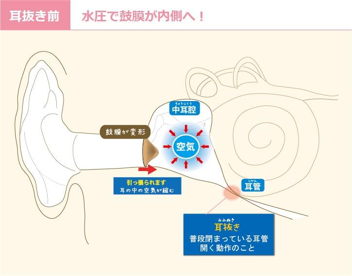 耳抜きの前、耳の中はこのように変化します。空気が圧縮されて、鼓膜が内側へ凹むのです。このままほおっておくと、鼓膜付近が非常に痛いです。